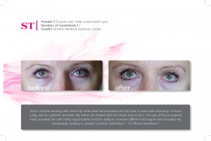 ST (Folds under eyes)-53yr-1tx-Grondo Medical Aesthetic Center