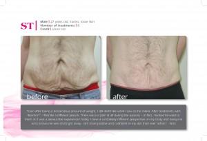 ST (Refit - stomach) 27yrmale-8tx-VioraLtd